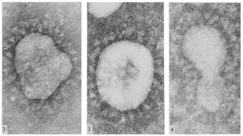 Coronavirus - prime immagini catturate al microscopio da June Hart